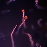 Mucor sporen 2