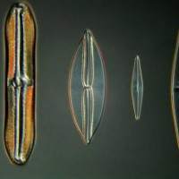 diatomeeën 150x dic